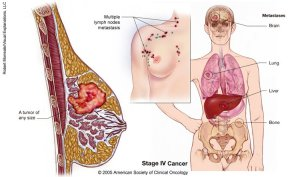 Obat Kanker Payudara Tanpa Operasi5